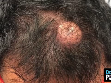 Dr. Pimple Popper — Wait Until You See The 'Coin Purse' That Pops Out Of This One!