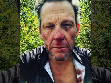Lance Armstrong Takes Blow to the Head During Wipeout on Bike