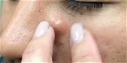 Dr. Pimple Popper — The 'Fish and Hook' Method, You Have To See This!!