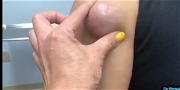 Dr Pimple Popper — This One Looks Like The Birth Of A Baby Alien!