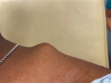 Dr. Pimple Popper — Watch The Exploding 'Meatball' Growing On This Person's Shoulder!