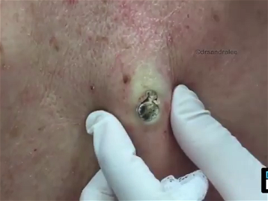 Dr. Pimple Popper — See This GIANT Blackhead Get Squeezed Leaving A Big Crater On This Face!!