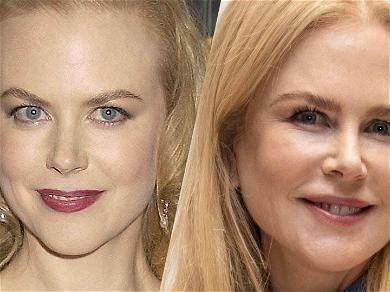 'The Undoing' Star Nicole Kidman's Fresh Face, Plastic Surgeons Weigh In