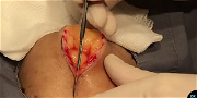 Dr. Pimple Popper — Watch This Massive 'Egg Yolk' Cyst Get RIPPED Out!!