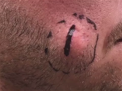 Dr. Pimple Popper — Watch This 'Cream Cheese' Filled Massive Cyst Explode!!