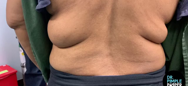 Dr. Pimple Popper — See The Cyst That Pops Out Looking Like 'Mac 'n' Cheese!