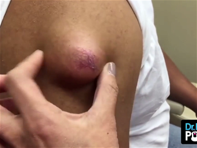 Dr. Pimple Popper — See This Giant 'Meatball' Cyst Explode!!