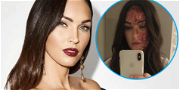Megan Fox Jokes About 'Rough Day' With Bloody Face