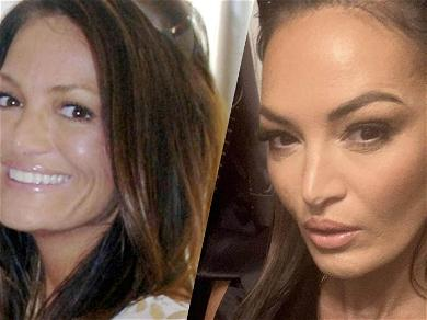 'Real Housewives Of Salt Lake City' Lisa Barlow's Face, Plastic Surgeons Weigh In