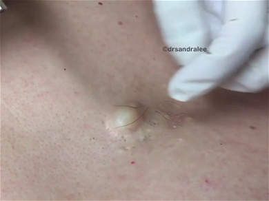 Dr. Pimple Popper — Huge Cyst Leave This Patient With GIANT Hole In His Chest!