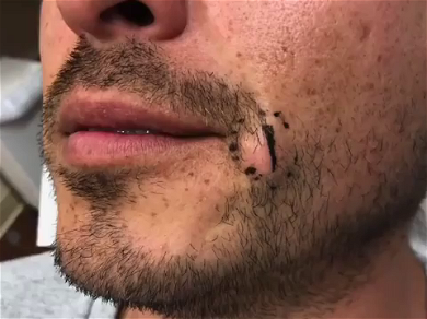 Dr. Pimple Popper — Watch This HUGE 'Tooth' Blast Out Of Giant Cyst!