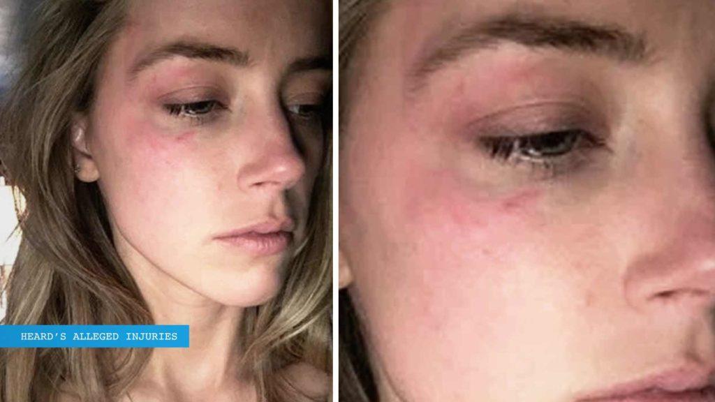 Amber Heard alleged injuries