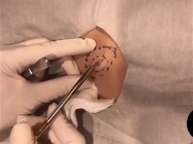 Dr. Pimple Popper — Huge Cyst Explodes All Over The Doctor And Her Splash Mask