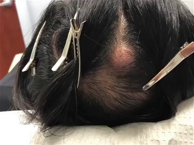 Dr. Pimple Popper — Watch This Head Shoot Out A 'Rubber Band' From Its Massive Cyst!