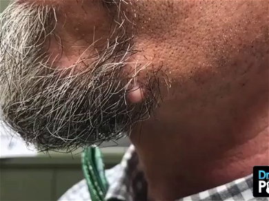 Dr. Pimple Popper — See The Giant Whitehead Explode From Underneath This Beard!