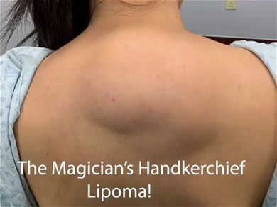 Dr. Pimple Popper Rips 'Raw Chicken' Out Of Patient's Hump Back — You Gotta See This!