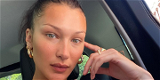 Bella Hadid Shows Off Sunburn And Crazy Tan Lines After Falling Asleep In the Sun
