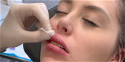 '90 Day Fiancé' Star Suffers Horrifying Injury After Botched Lip Injection