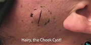 Dr. Pimple Popper — Watch This Face Cyst EXPLODE Like A Tube Of 'Toothpaste!!'