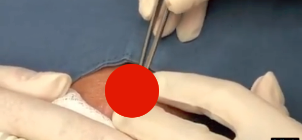 Dr. Pimple Popper Takes Out A 'Buttery' 20-Year-Old Forehead Steatocystoma