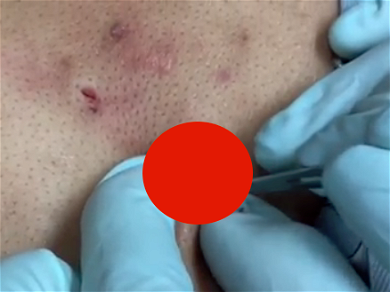 Watch 'Dr. Pimple Popper' Delight In Taking Down A Big Steatocystomas