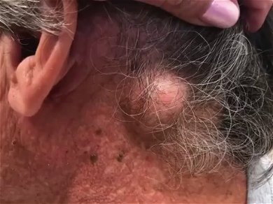 Dr. Pimple Popper — See This Neck Cyst Filled With 'Egg Salad' Explode!