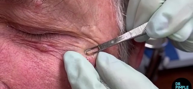 Dr. Pimple Popper — See The Highlight Reel Of Blackheads!