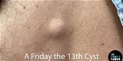 Dr. Pimple Popper — Take A Look At This Massive Cyst's Sac Removal, Pasta Shells Anyone?!