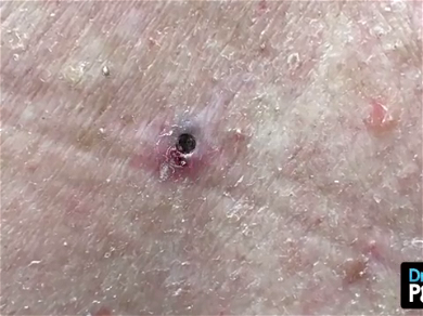 Dr. Pimple Popper — See GIANT Blackhead Explode A 'Watermelon Seed' Out Of Skin!