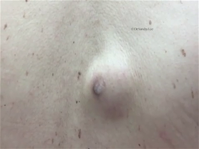 Dr. Pimple Popper — Massive Cyst Explodes Dark Brown Liquid, Unlike Anything You Have Ever Seen!!