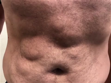 Dr. Pimple Popper — See The GIANT Stomach Cyst Get Ripped Out Of This Patient's Body!!