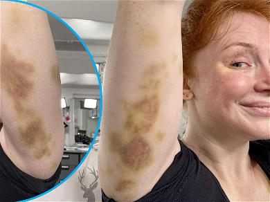 Bryce Dallas Howard Shows Off GNARLY Bruises From 'Jurassic World' Stunts After Pressure From Chris Pratt