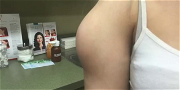 Dr. Pimple Popper — See This GIANT 'Jelly Fish' Lipoma Explode Out Of Patient's Arm!