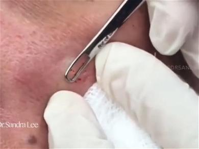 Dr. Pimple Popper — See The Special 'Blackhead and Whitehead' Playlist!
