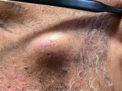 Dr. Pimple Popper — Rips 'Baby Shrimp' Cyst Right Out Of This Patient's FACE!!