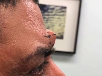 Dr. Pimple Popper — See This Forehead HORN Burst Liquid 'Rice Pudding!'