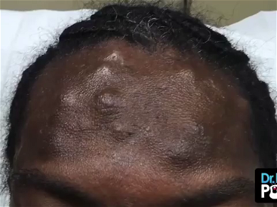 Dr. Pimple Popper — Mass Amount Of Cysts Looks Like 'Skittles' Popping Out Of This  Forehead