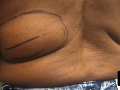 Dr. Pimple Popper — Watch Gigantic 'Sweet Potato' Lipoma Get Ripped Out Of This Back!