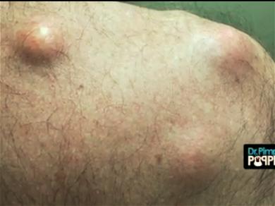 Dr. Pimple Popper Finds Several 'Hard Boiled Eggs' On Man's Back