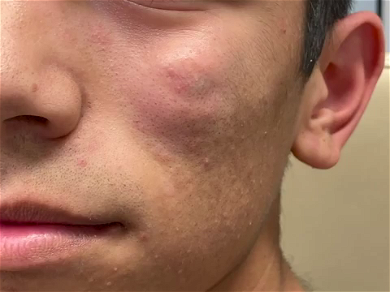 Dr. Pimple Popper — See This Massive Face Cyst Explode Green Liquid From Under Patient's Eye!!