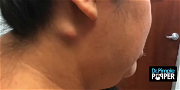 Dr. Pimple Popper — Did She Just Pull Out Someone's Twin? Watch The Video!