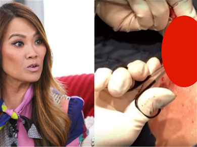 'Dr. Pimple Popper' Goes Back-To-Back Against A Big Lipoma And Cyst In New Video