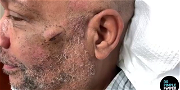 Dr. Pimple Popper — Watch Her Squeeze A 'Baby Shrimp' Out Of Her Patient's Cheek!