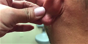 Dr Pimple Popper — Watch This Earlobe POUR Out A River Of Puss!!