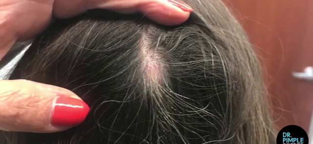 Dr. Pimple Popper — Watch Her Squeeze Massive Cyst Aiming Right At Her Face!