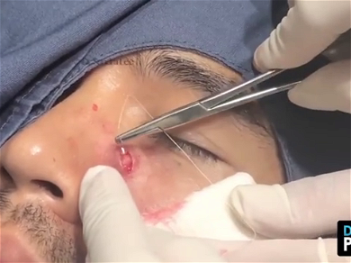 Dr. Pimple Popper — See A 10-YEAR-OLD Cyst Get Ripped Out With Fishing Wire