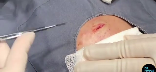 Dr. Pimple Popper — Watch This MASSIVE Forehead Cyst Squirt Out A 'Wiggly Worm!!'