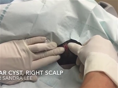Dr. Pimple Popper — Watch This 'Olive' Cyst Explode And Roll Right Off The Table!