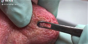 Dr. Pimple Popper — See This Nose Explode Into TONS Of Little Squirting Whiteheads!