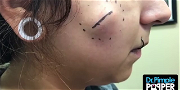 Dr. Pimple Popper — See This Monster Cheek Cyst Explode After A Few Squeezes